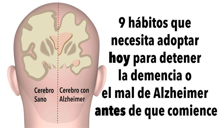 habitos-detener-demencia-alzheimer